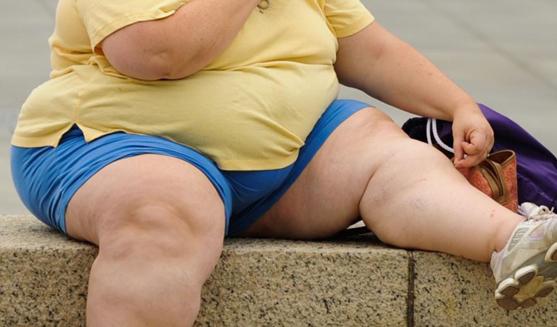 Image de soi et obésité